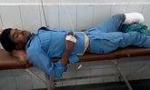 คิดได้ไง! หมออินเดียตัดขาคนไข้รถคว่ำ ก่อนให้หนุนแทนหมอน