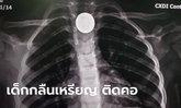 พ่อแม่โปรดระวัง! แพทย์โพสต์อุทาหรณ์ เด็ก 3 ขวบ กลืนเหรียญติดคอ เสี่ยงอุดทางเดินหายใจ