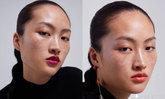 """เดือดอีกครั้ง ชาวจีนไม่พอใจ """"Zara"""" ใช้นางแบบจีนหน้าเป็นกระ ชี้ดูถูกให้ดูน่าเกลียด"""