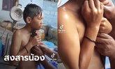 เด็กชายวัย 11 ปี เล่านาทีระทึก อยากจับปลาช่อนโชว์แม่ เจอกระโดดกัดใต้คาง