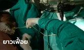 เปิดคลิปแพทย์ดึงพยาธิตืดหมูจากปากคนไข้ เตือนคนชอบเปิปของสุกๆ ดิบๆ