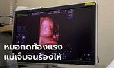 ว่าที่คุณพ่อใจสลาย เมียท้อง 6 เดือน แท้งลูกหลังอัลตร้าซาวด์ 4D ชี้หมอกดแรง-พูดหยาบ