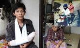 หนุ่มโรงงานถูกแก๊งโจ๋คล้ายนักเรียนอาชีวะฟันแขน แพทย์ชี้อาจพิการ