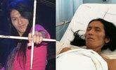 เต้ย ไฮร็อก ผอมซูบ ป่วยมะเร็งตับระยะสุดท้าย