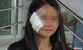 ผู้ใหญ่บ้านฉุนจั่วไพ่แต้มน้อย ปาแก้วใส่หน้าสาวเลือดสาด เย็บ 11 เข็ม