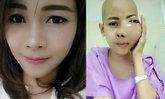 เจนี่ สาวป่วยมะเร็ง ใบหน้าบวม เสียชีวิตแล้ว