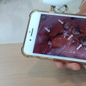 สยอง นักวิจัยมทส.เตือนพยาธิจากทานปลากุ้งหอยดิบ แนะทำให้สุกก่อนรับประทาน