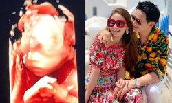 """""""นาตาลี"""" เผยภาพอัลตร้าซาวด์ 6 เดือนครึ่ง แอบแซวลูกสาวได้เชื้อพ่อแม่มาแรงมาก"""