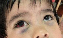 โรงพยาบาลชี้แจง ดูดเสมหะเด็ก 3 ขวบจนตาห้อเลือด ยันไม่มีการทำร้าย