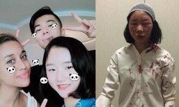 สาวจีนมึน! เดินเที่ยวอยู่ดีๆ ถูกชน-ตีหัวแตก เย็บ 6 เข็ม