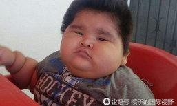 หนูน้อยเม็กซิโกวัยแค่ 10 เดือน ป่วยโรคหายากตัวหนักถึง 30 กก.