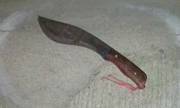 ศึกแย่งมรดก ญาติผู้พี่ชักปืนยิงน้องสาวกลางร้านชำ ดับ 1 ศพ