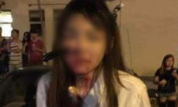 สาวมาเลย์โดนมีดปักแก้มมิด หลังถูกโจรดักฉกกระเป๋าในเมืองปีนัง