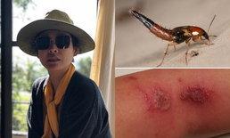 """""""หน่อย บุษกร"""" โพสต์ภาพแผล ถูกพิษแมลงก้นกระดก"""