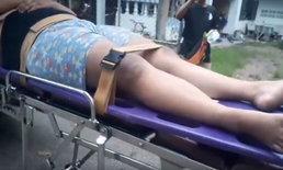 หามสาววัย 17 ส่งโรงพยาบาล แฟนเก่าซ้อมสะบักสะบอม เพราะไม่ยอมคืนดี