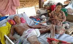ชีวิตลำเค็ญ! ตาป่วยอัมพาต 6 ปี ยายรับจ้างหาเงินประทังชีวิต บ้านมีเพียงสังกะสีมุงหลังคา