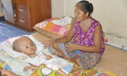 เด็กหัวโตโผล่-ครอบครัวสุดรันทด 5 ชีวิตอยู่ห้องเช่าเท่ารังหนู วอนผู้ใจบุญผ่านโซเชียล