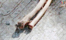 ชาวบ้านผงะ! สุนัขคาบชิ้นส่วนท่อนแขนมนุษย์ ยังมีเนื้อติดกระดูก