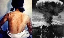 """ย้อนภาพเก่า รำลึก 73 ปี สหรัฐทิ้งนิวเคลียร์ """"ฮิโรชิมา-นางาซากิ"""""""