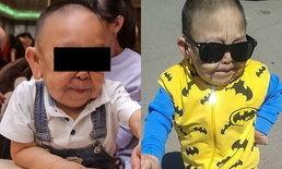 เด็กคาซัค 6 ขวบ ป่วยโรคหนังยืด จนหน้าแก่ โรงพยาบาลฝืนกฎ ยอมให้ผ่าตัดหน้า