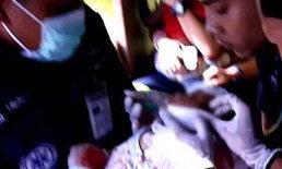 ทารกวัย 19 วัน ถูกสุนัขขย้ำพ้นขีดอันตรายแล้ว-หมาถูกรุมตีตาย
