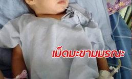 เด็กหญิง 2 ขวบเม็ดมะขามติดหลอดลมดับ พ่อแม่คาใจ ถึงมือหมอไวทำไมลูกตาย?