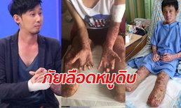 หนุ่มเล่าอุทาหรณ์เฉียดตาย กินหลู้หมูดิบ ติดเชื้อในกระแสเลือด ต้องตัดขาทิ้ง 2 ข้าง