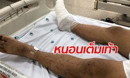 อัปเดตอาการ ชายหลงป่าน้ำหนาว 13 วัน เท้าเป็นแผลติดเชื้อ หนอนชอนไชยั้วเยี้ย
