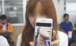 หวิดหลอดลมขาด! สาวโชคร้ายเสียโฉม-ถูกสายอินเตอร์เน็ตเกี่ยวล้มเป็นแผลเหวอะที่คอ
