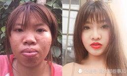 สาวเวียดนามลงทุนศัลยกรรม จากลูกเป็ดขี้เหร่ เป็นสาวสวยเมียทายาทเศรษฐี