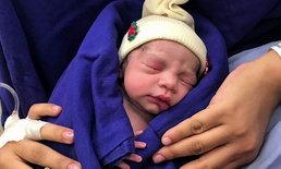 """รายแรกของโลก! หญิงบราซิลคลอด """"ทารก"""" จากมดลูกของผู้บริจาคที่เสียชีวิตแล้ว"""
