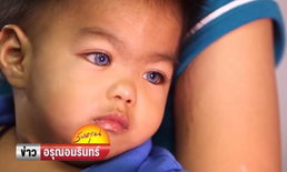 """อ.เจษฎา ไขปริศนา """"หนูน้อยตาสีฟ้า"""" แม้ไม่ใช่ลูกครึ่ง แม่บอกสุขภาพตาปกติ"""