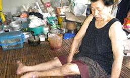 สลด! ยายขาลีบ วัย 68 ทำงานนวดเลี้ยงชีวิต