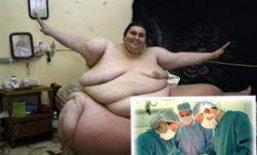 ตะลึง! ผ่าลดความอ้วน ด้วยวิธีสาวลำไส้ออกมาตัดทางปาก