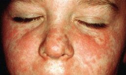 แพทย์UKเตือนเด็กรุ่นใหม่เสี่ยงรับเชื้อโรคหัดสูง