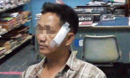 นักข่าวสถานีโทรทัศน์ดังแจ้งความ ไปลอยกระทงเจอสะเก็ดประทัดลูกหลง ลูกตาหวิดบอด