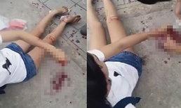 ตำรวจเร่งหาคนร้ายฟันแขนหญิงว่อนเน็ต ย่านมีนบุรี