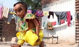 เด็กชายอินเดียเกิดมาพร้อมรูปลักษณ์ คล้ายพระพิฆเนศ