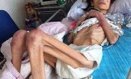 ชีวิตบัดสบ! สาวจีนแค้นผัวมีชู้ ซดยาพิษแต่ไม่ตาย กลายเป็นอัมพาต