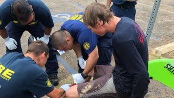 หนุ่มโชคร้าย ฟาดเคราะห์ 4 ปีซ้อน หมี-งู-ฉลามทำร้าย แต่ยังรอด