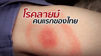 """หญิงไทยป่วย """"โรคลายม์"""" รายแรกของประเทศ รักษาได้ทัน แต่ความทรงจำหาย"""