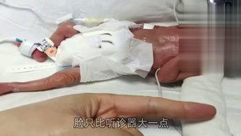 รอดปาฏิหาริย์! ทารกจิ๋วขนาดเท่าฝ่ามือผู้ใหญ่ น้ำหนักตัวแค่ 450 กรัม