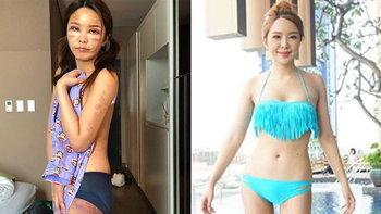 """ภูมิใจมาก """"หญิงแย้"""" อวดรูปร่างให้ดูทั้งตัว หลังศัลยกรรมครั้งใหญ่ผ่านไป 4 เดือน"""