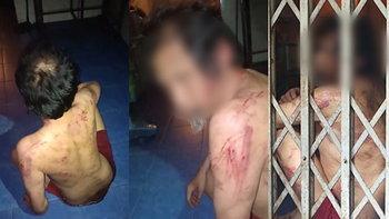 พี่ชายสติฟั่นเฟือนถูกน้องจับขัง-ตีจนแผลเต็มตัว เพื่อนบ้านเห็นภาพหดหู่นับ 10 ปี