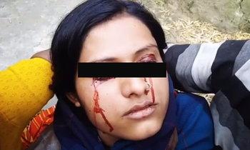 สาวอินเดียเหงื่อออกเป็นเลือด สามีทอดทิ้งเชื่อเป็นแม่มด