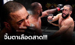 """ไม่มีการตัดสิน! """"มูฮัมหมัด"""" ดวงแตกถูกนิ้ว """"เอ็ดเวิร์ดส"""" จิ้มตา ศึก UFC Fight Night"""