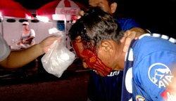 เกมจบคนไม่จบ!แฟนปลาทู-ฉลามปะทะเดือดเลือดสาด+Clip