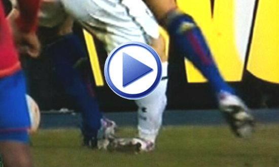 หวาดเสียว! คลิป เบล ล้มข้อเท้าพับ