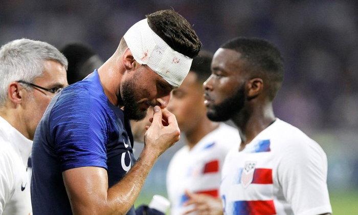 """""""เดชองส์"""" เผย """"ชิรูด์"""" ฟิตทันช่วยทีมประเดิมบอลโลกแน่"""