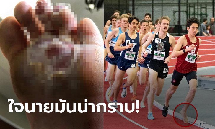 """ยอดมนุษย์! เผย """"คีริน"""" ทนวิ่งเท้าเปล่าจนแผลเหวอะก่อนซิวที่ 1 ชิงแชมป์มหาวิทยาลัย (ภาพ+คลิป)"""